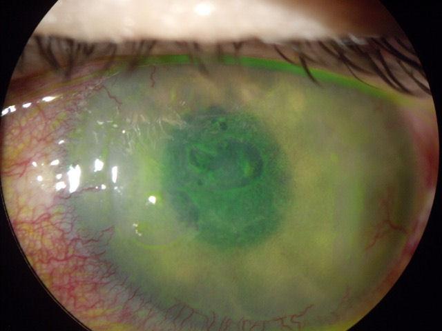 negativne-posledice-lasik-operacije.jpg